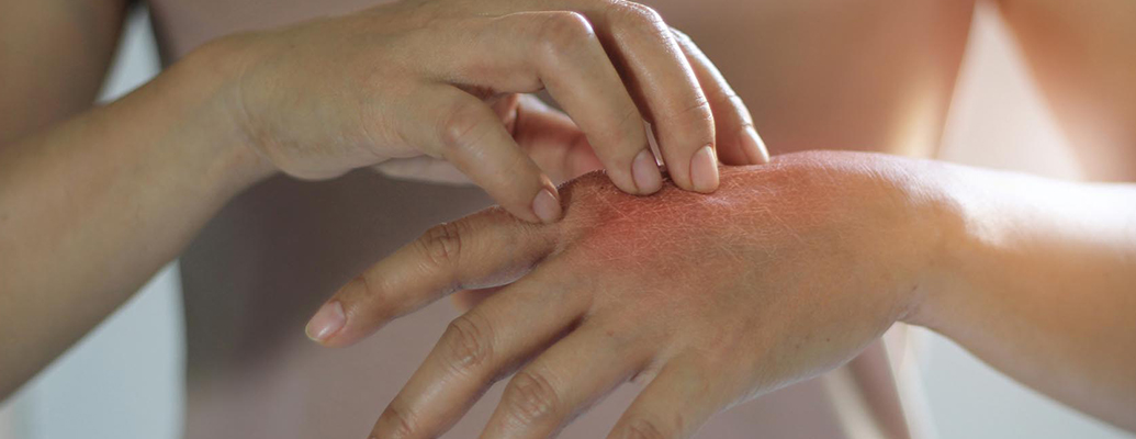 What is an inflammation?